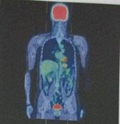 PET-CT検査の個人体験談|実際の費用・申込・診察・結果の全て