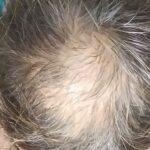 エドガーケイシー療法3つでハゲ薄毛の増毛チャレンジ中|ひまし油パック自作・原油シャンプー・ジャガイモ皮
