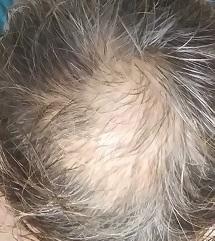 エドガーケイシー3つの療法でハゲ薄毛の増毛チャレンジ中|ひまし油パック自作・原油シャンプー・ジャガイモ皮