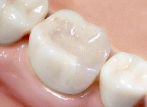 差し歯(仮歯)を自分で作ってみた体験談|レンジ材料で製作した自作歯